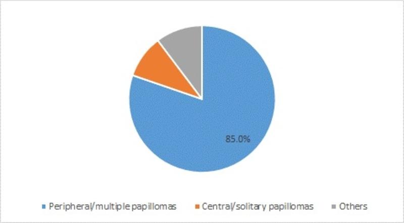 Intraductal Papilloma Market-