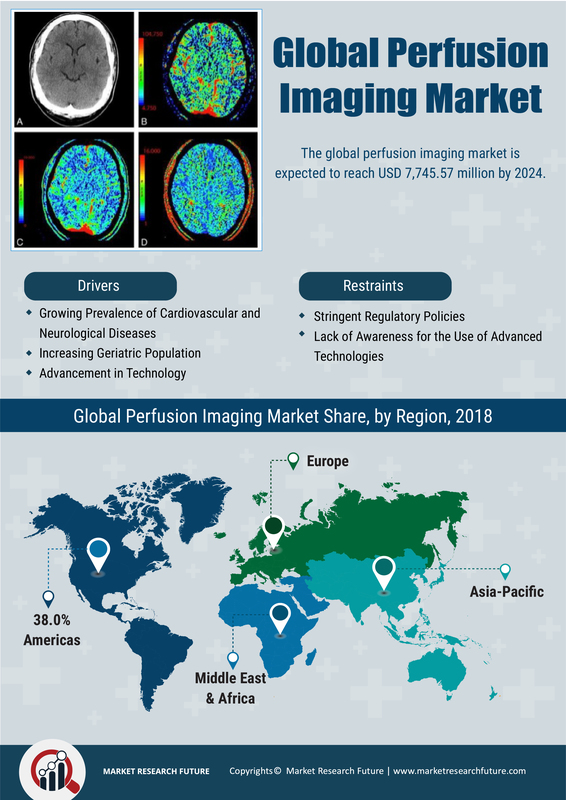Perfusion Imaging Market