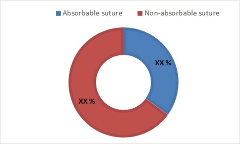 Suture wire Market-